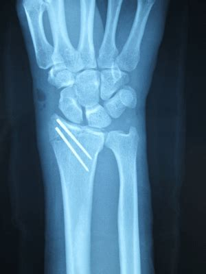 Radius Styloid Process Fractures Treated with Break-Away